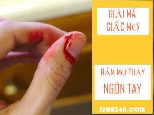 Nằm mơ thấy ngón tay chảy máu đánh con gì